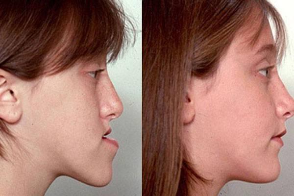 Cirugía maxilofacial Medellin caso antes-después