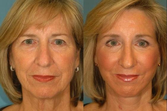 Rejuvenecimiento facial antes después