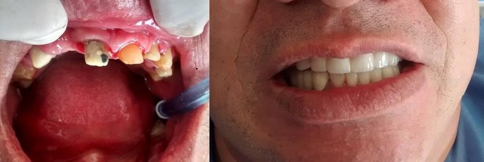 Puentes-dentales-tipos-antes después