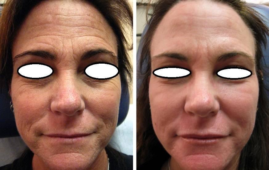 Botox-antes-despues-Medellin